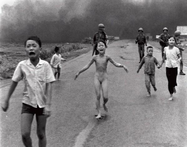 Attaque au Napalm durant la guerre au vietnam, cette jeune fille a du subir 17 greffes de peau (...)
