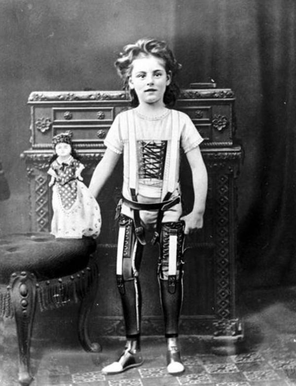 1980 : Des jambes artificielles