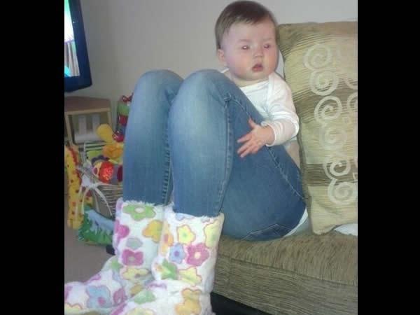 Syndrome des jambes énormes
