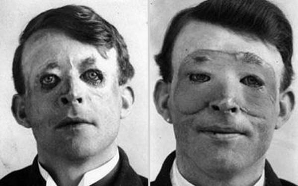 1917 : Une des premières transplantation de peau