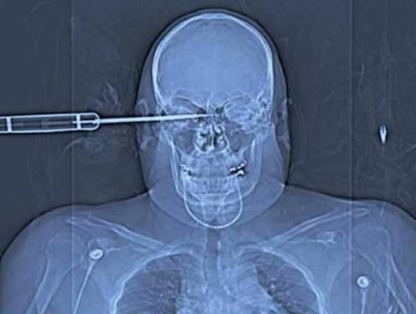 Couteau dans la tête d'un soldat (peu de dégats)